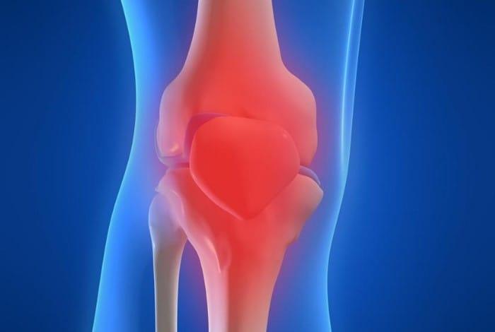 Диагностика артрита